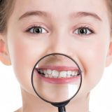 Próchnica zębów mlecznych