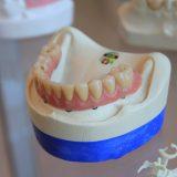 Jak prawidłowo dbać o protezę zębową?