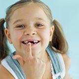 Wybicie zęba u dziecka